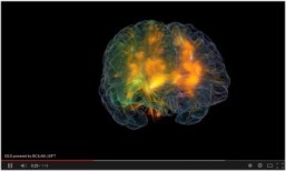 'Glass Brain' shows neurons firing in real time