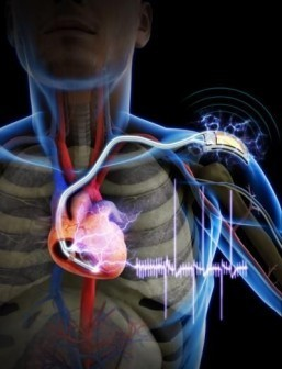 Self-powered cardiac pacemaker could spare seniors additional surgeries