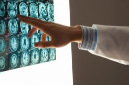 Brain scans help predict learning problems: study